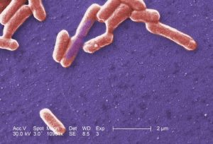the mutaflor probiotic bacteria is a harmless variety of e. coli, and is helpful for healing leaky gut